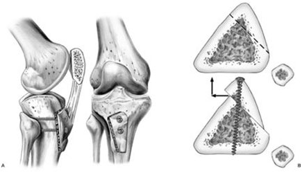 Tibial Tubercle Osteotomy Surgical Procedure